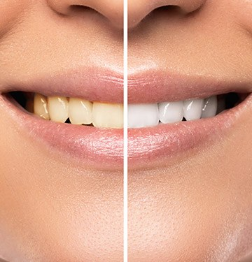 Closeup of smile half before and half after whitening