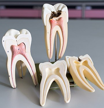 Models of the inside of a healthy and damaged tooth