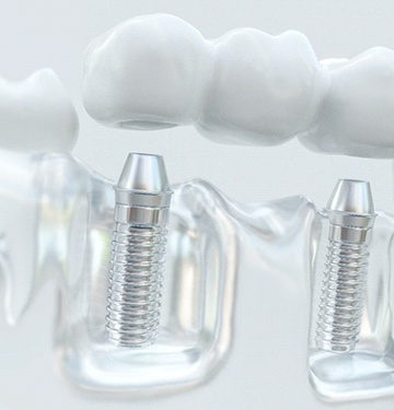 implant-retained dental bridge