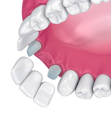 Animation of dental bridge