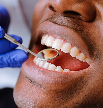 Closeup of patient during dental checkup