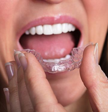 Closeup of patient placing oral appliance