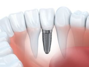 Image of an implant in the bottom jaw
