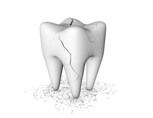 A cracked tooth that needs to be treated by an emergency dentist in West Bloomfield