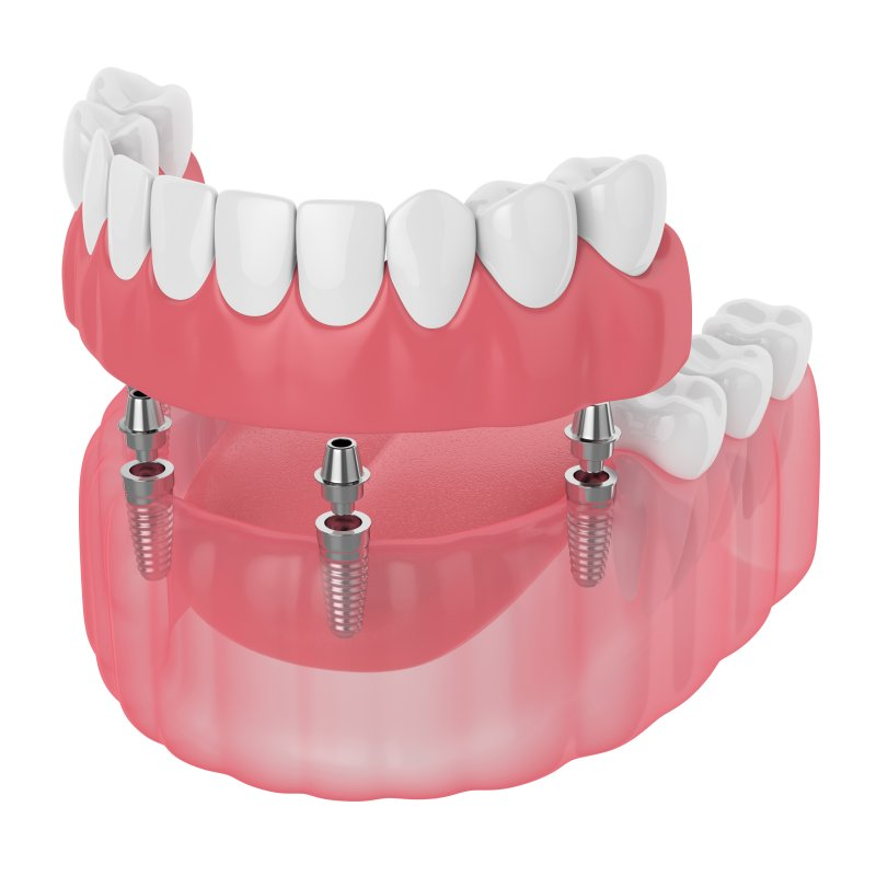Implant-retained denture in West Bloomfield