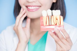 dentist holding a model of dental implants in West Bloomfield